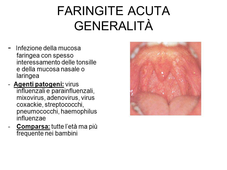 rimedi faringite acuta
