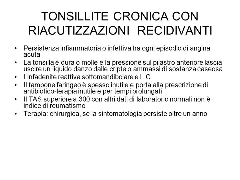 TONSILLITE CRONICA CON RIACUTIZZAZIONI RECIDIVANTI