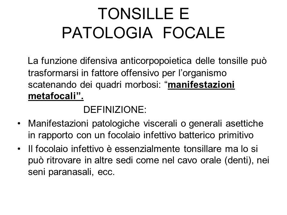 TONSILLE E PATOLOGIA FOCALE