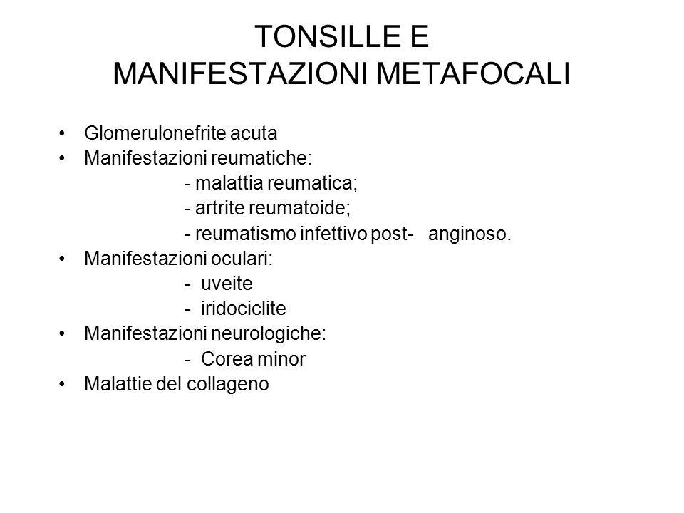 TONSILLE E MANIFESTAZIONI METAFOCALI