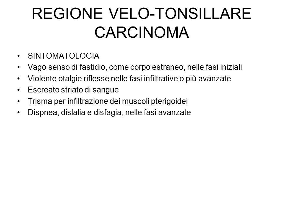 REGIONE VELO-TONSILLARE CARCINOMA