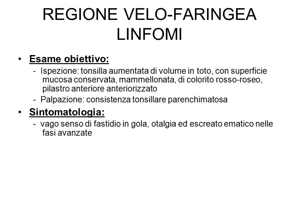 REGIONE VELO-FARINGEA LINFOMI