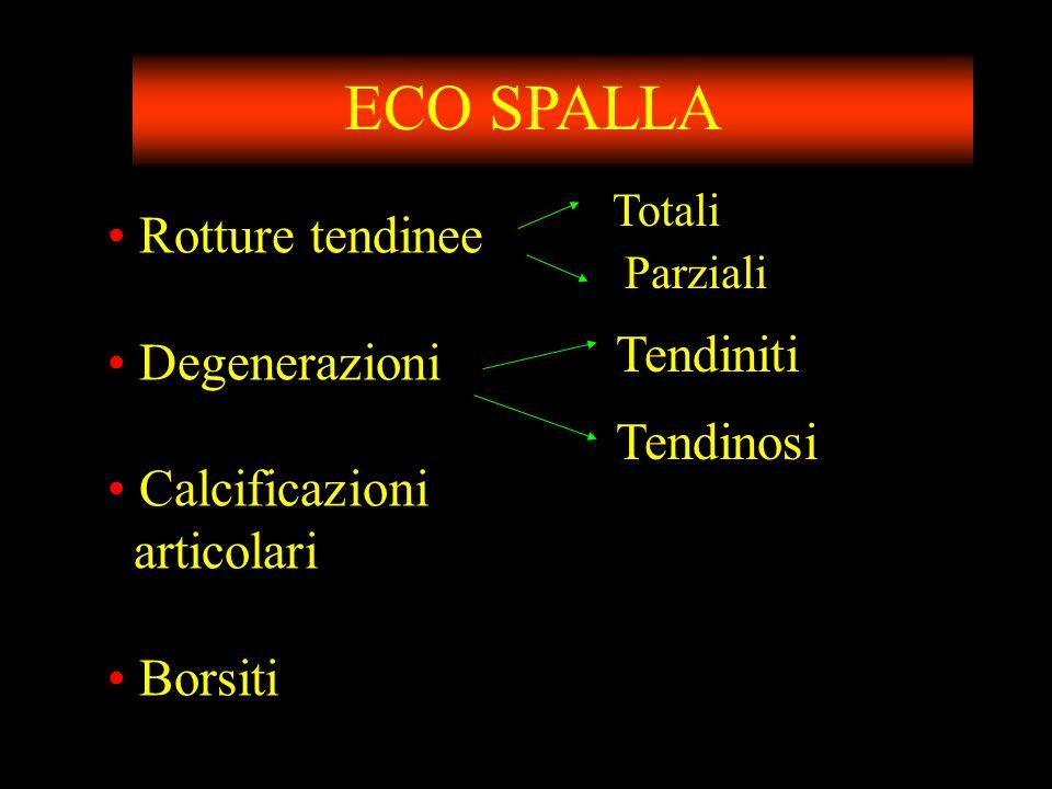 ECO SPALLA Rotture tendinee Degenerazioni Tendiniti Calcificazioni