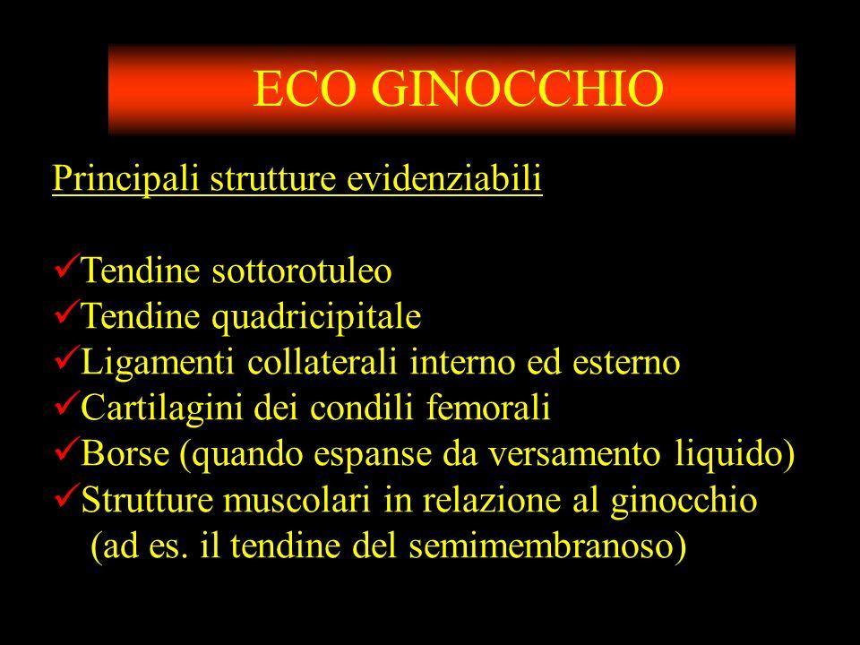 ECO GINOCCHIO Principali strutture evidenziabili Tendine sottorotuleo