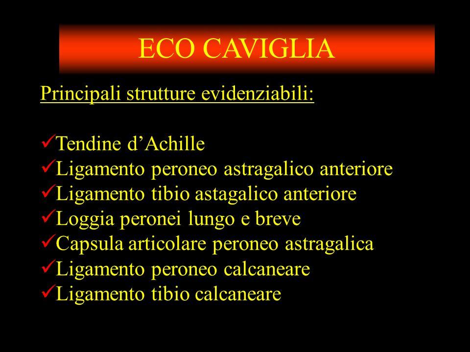 ECO CAVIGLIA Principali strutture evidenziabili: Tendine d'Achille