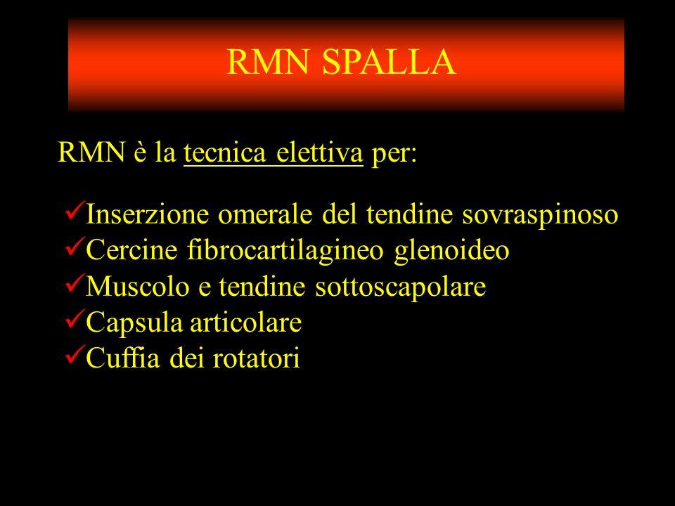 RMN SPALLA RMN è la tecnica elettiva per: