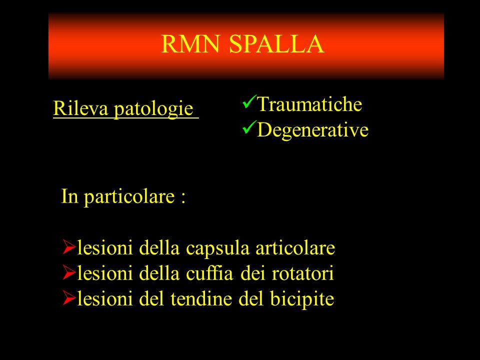 RMN SPALLA Traumatiche Rileva patologie Degenerative In particolare :