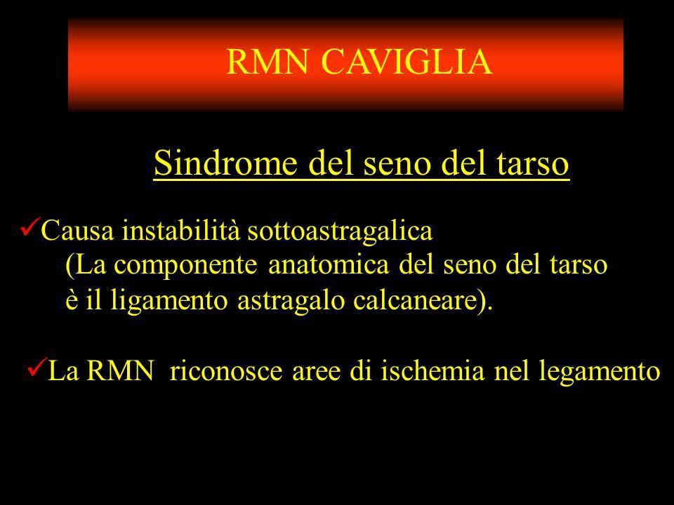 Sindrome del seno del tarso