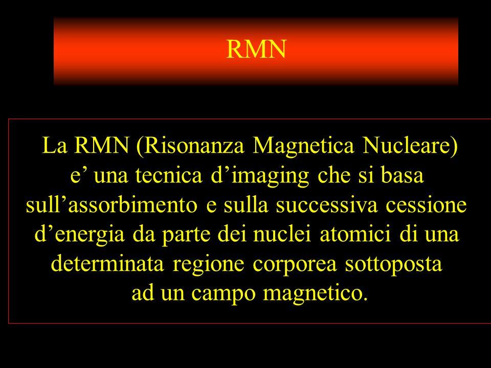 RMN La RMN (Risonanza Magnetica Nucleare)