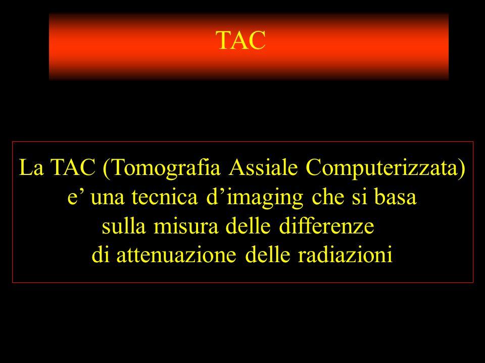 TAC La TAC (Tomografia Assiale Computerizzata)