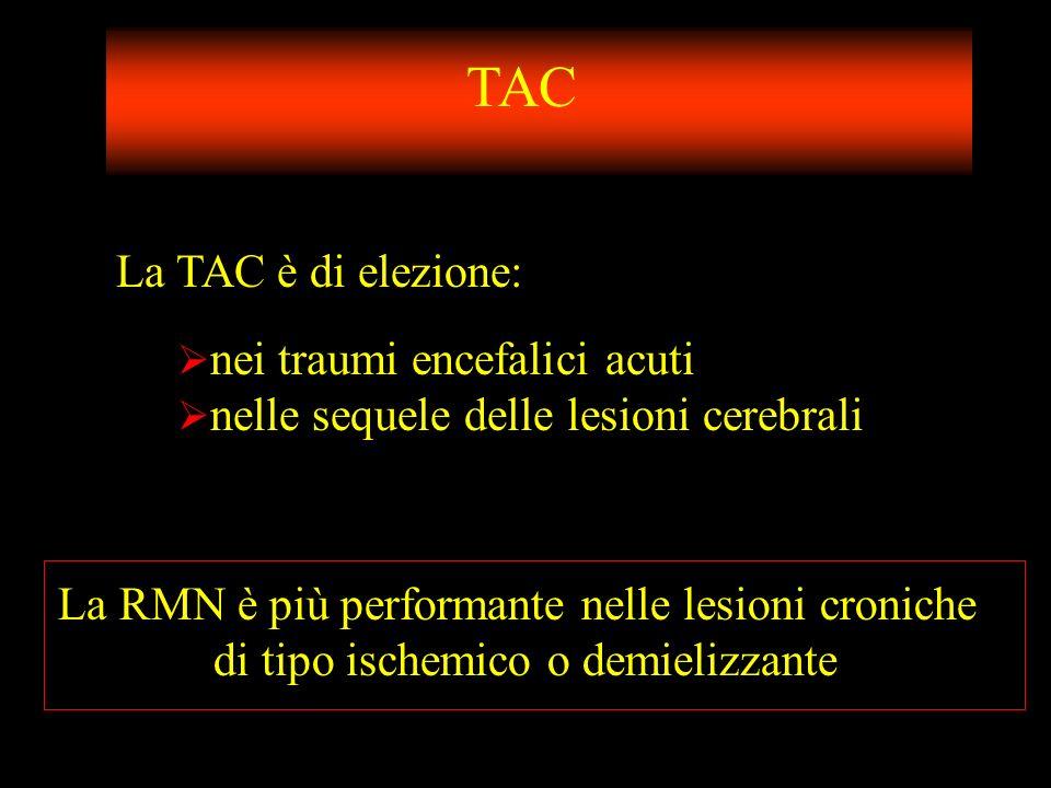 TAC La TAC è di elezione: nei traumi encefalici acuti