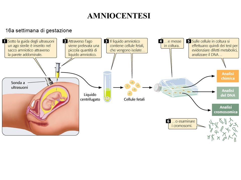 AMNIOCENTESI 16a settimana di gestazione