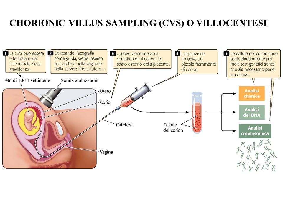 CHORIONIC VILLUS SAMPLING (CVS) O VILLOCENTESI