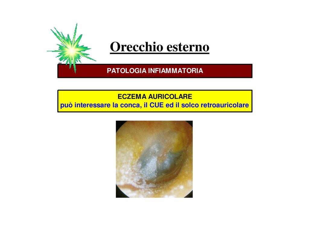 Anatomia Dell Orecchio Ppt Scaricare