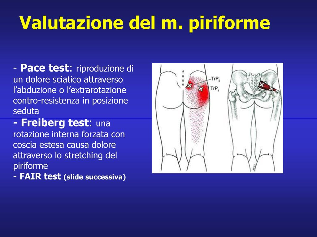 Valutazione del m. piriforme