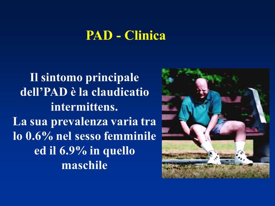 Il sintomo principale dell'PAD è la claudicatio intermittens.