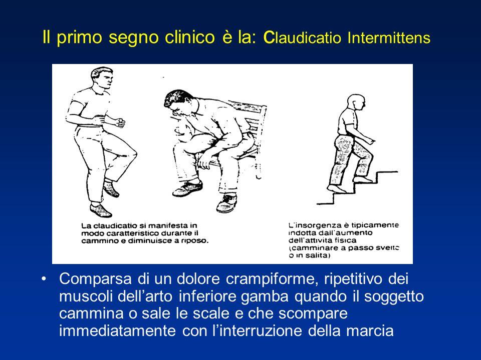 Il primo segno clinico è la: claudicatio Intermittens