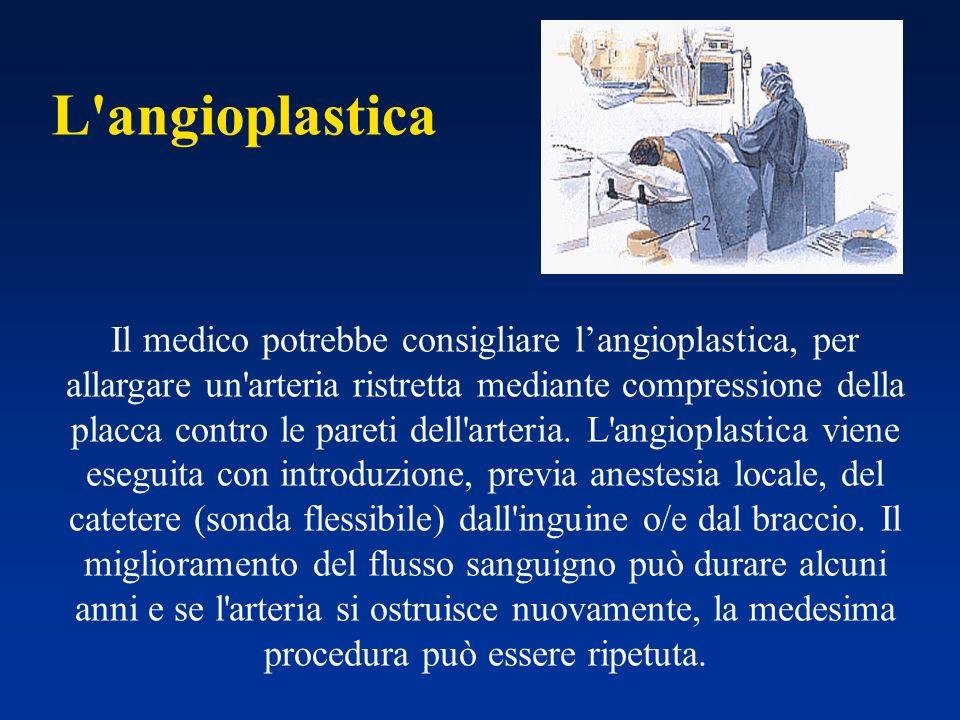 L angioplastica