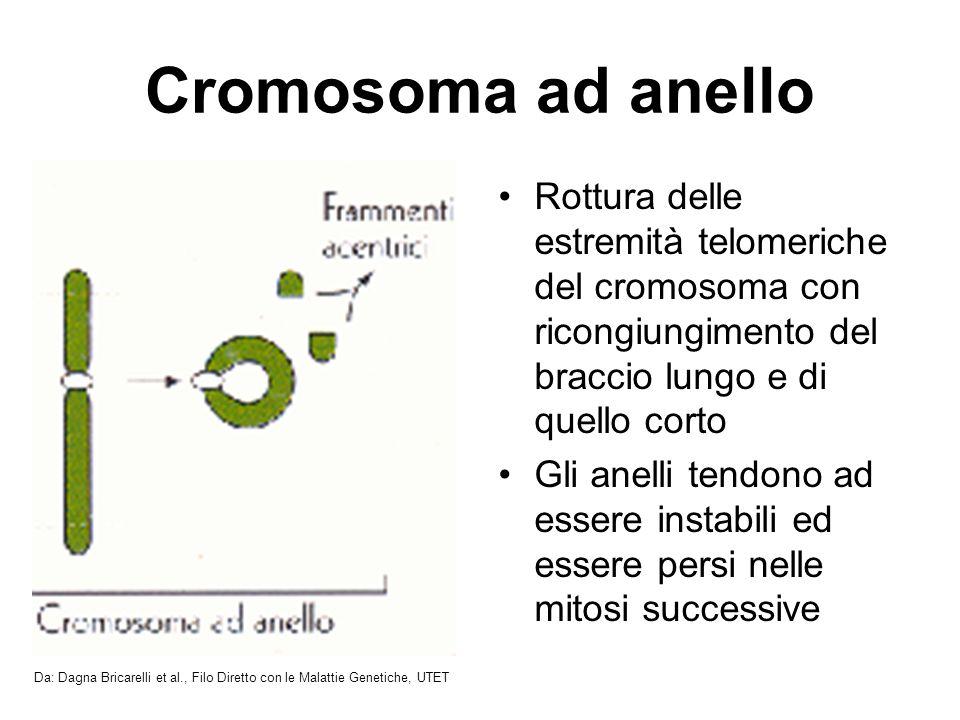 Cromosoma ad anello Rottura delle estremità telomeriche del cromosoma con ricongiungimento del braccio lungo e di quello corto.