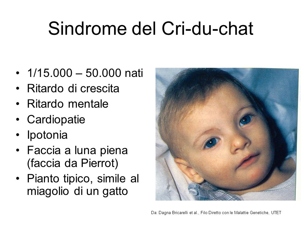 Sindrome del Cri-du-chat
