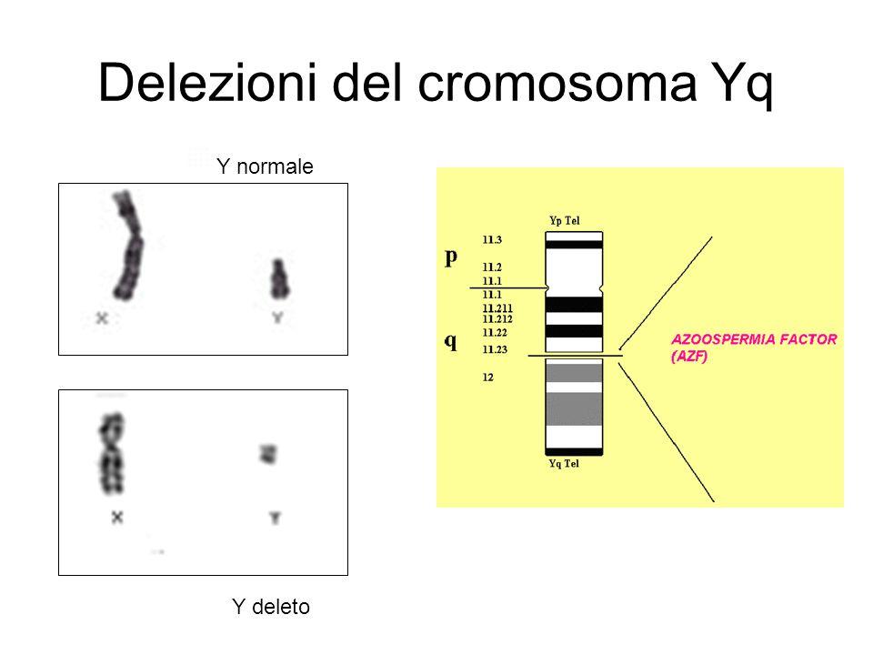 Delezioni del cromosoma Yq
