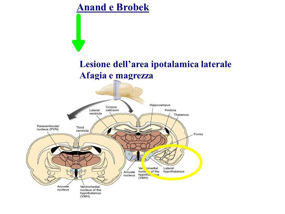 Anand e Brobek Lesione dell'area ipotalamica laterale