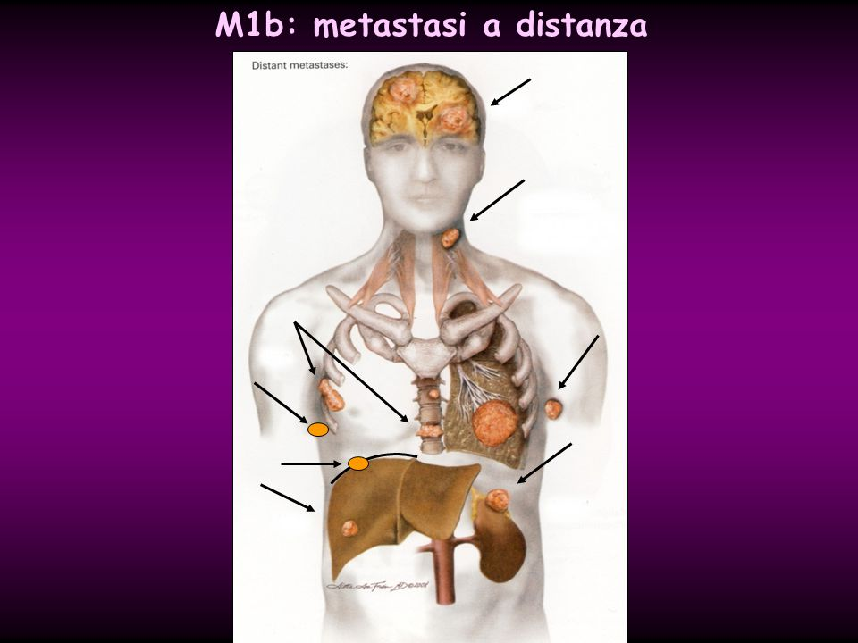 M1b: metastasi a distanza