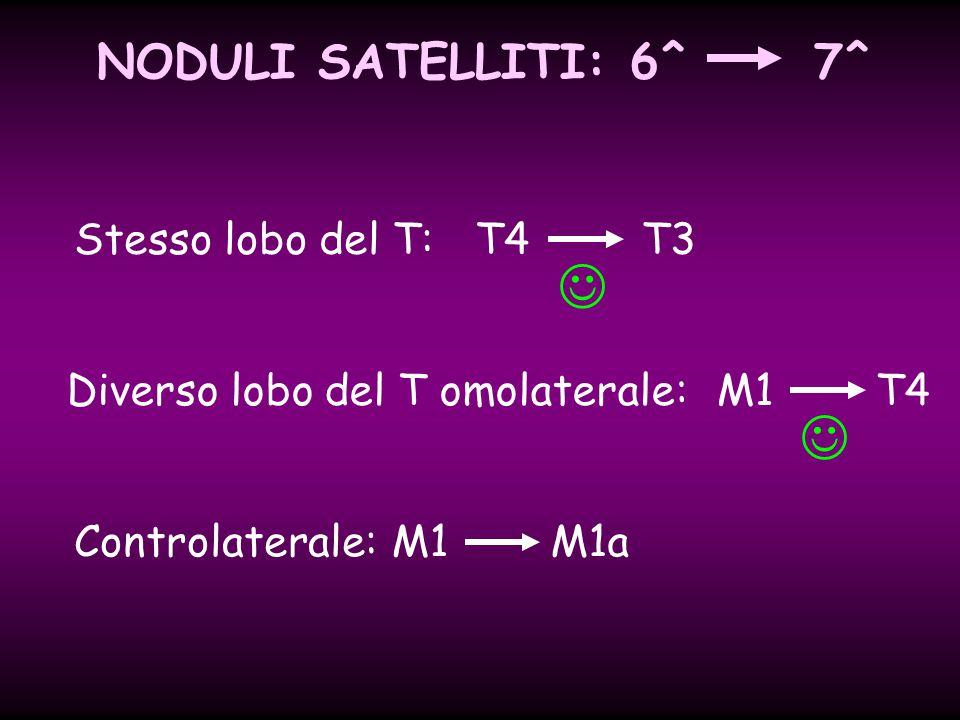   NODULI SATELLITI: 6^ 7^ Stesso lobo del T: T4 T3