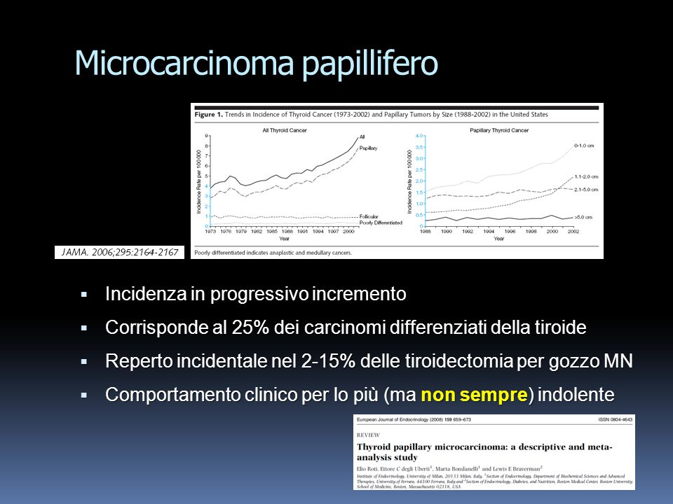 Microcarcinoma papillifero