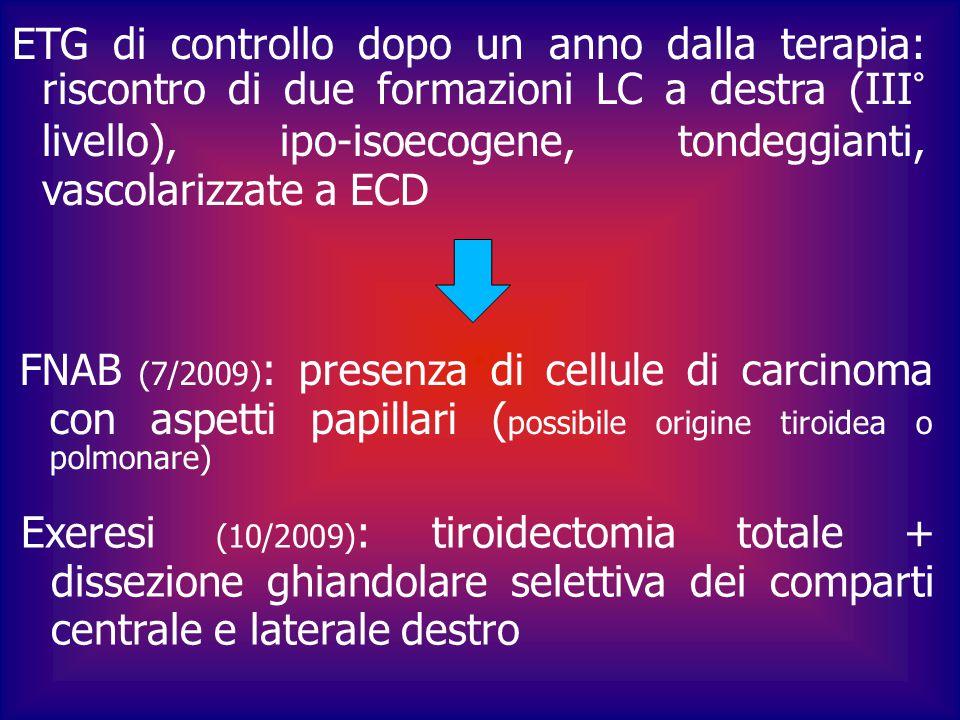ETG di controllo dopo un anno dalla terapia: riscontro di due formazioni LC a destra (III° livello), ipo-isoecogene, tondeggianti, vascolarizzate a ECD