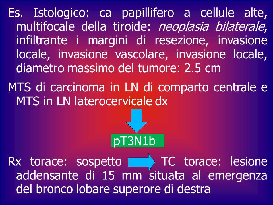 Es. Istologico: ca papillifero a cellule alte, multifocale della tiroide: neoplasia bilaterale, infiltrante i margini di resezione, invasione locale, invasione vascolare, invasione locale, diametro massimo del tumore: 2.5 cm