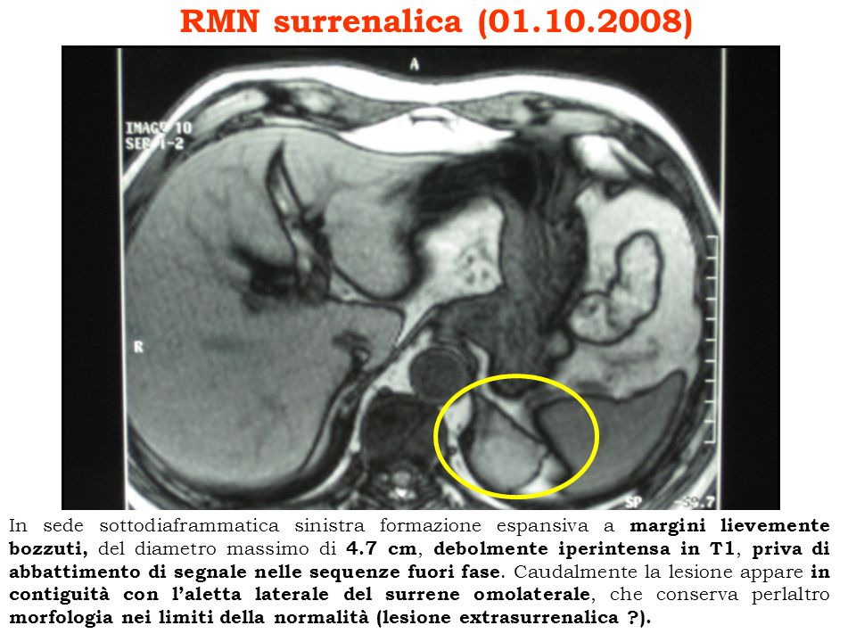 RMN surrenalica (01.10.2008)
