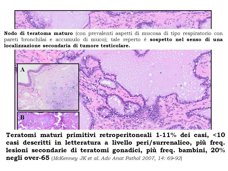 Nodo di teratoma maturo (con prevalenti aspetti di mucosa di tipo respiratorio con pareti bronchilai e accumulo di muco); tale reperto è sospetto nel senso di una localizzazione secondaria di tumore testicolare.
