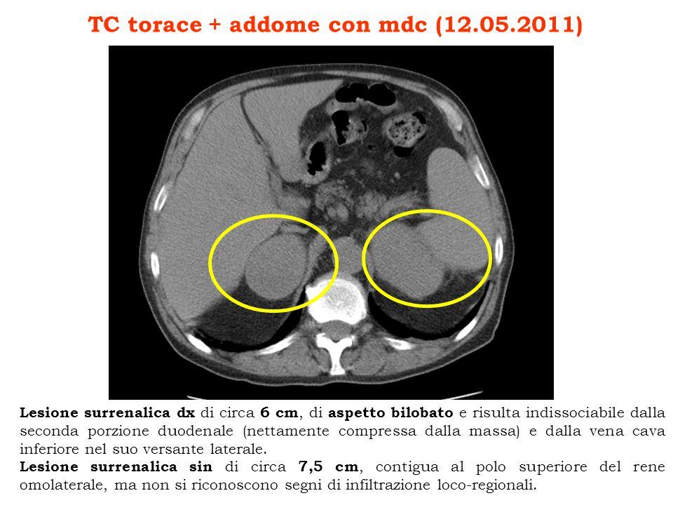 TC torace + addome con mdc (12.05.2011)