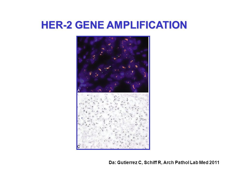 HER-2 GENE AMPLIFICATION