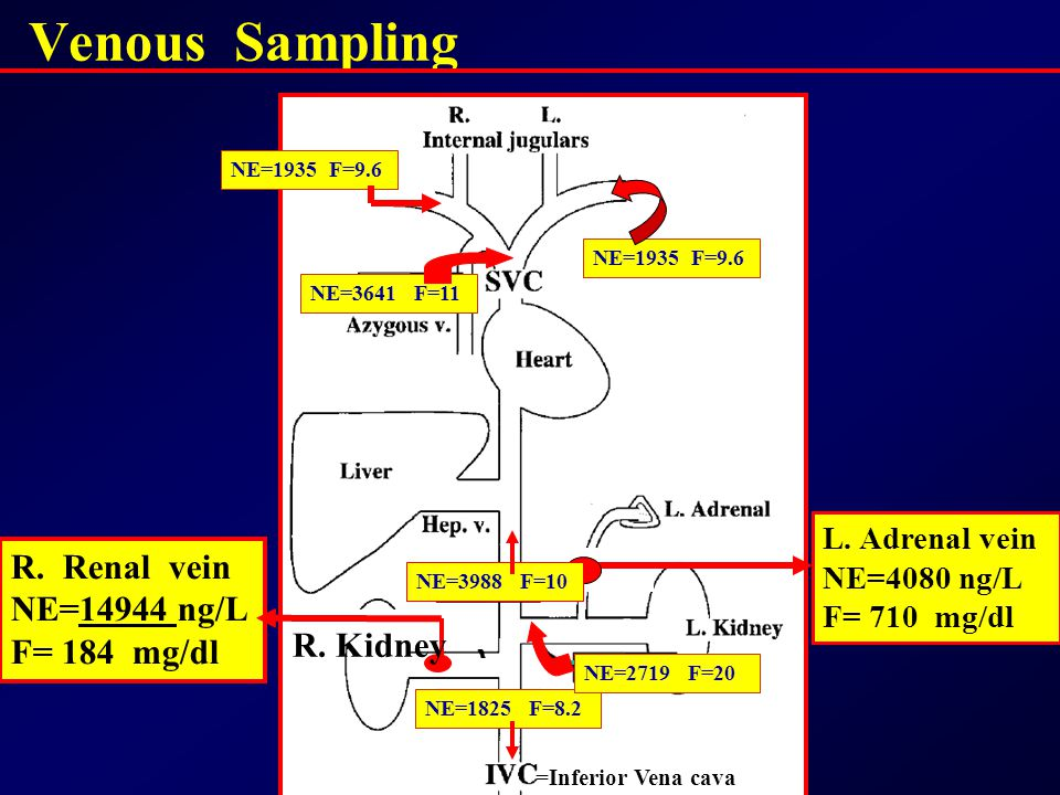 Venous Sampling R. Renal vein NE=14944 ng/L F= 184 mg/dl R. Kidney