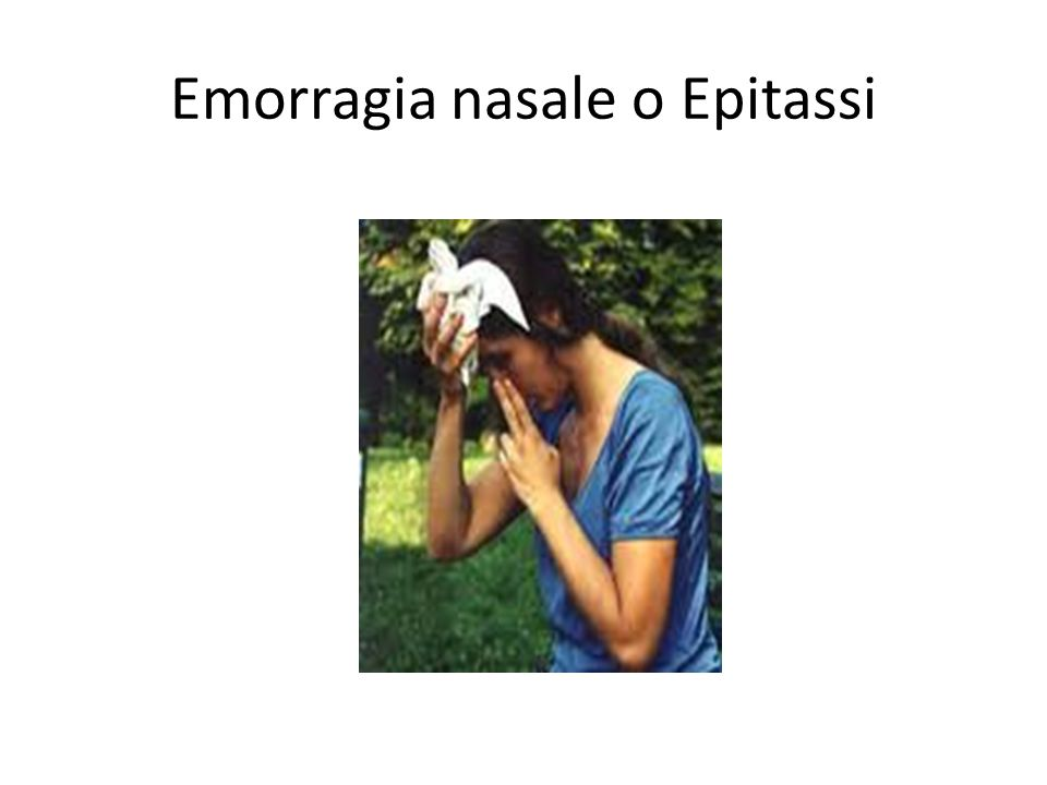 Emorragia nasale o Epitassi