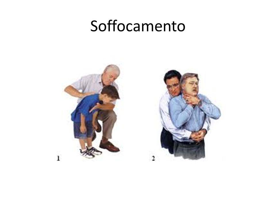 Soffocamento