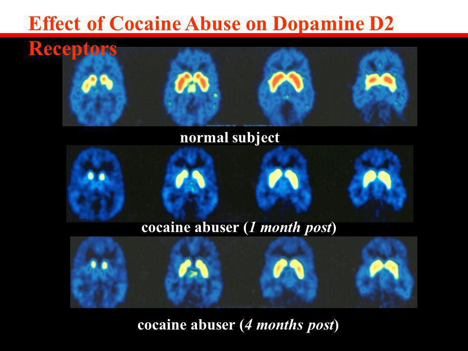 Effect of Cocaine Abuse on Dopamine D2 Receptors