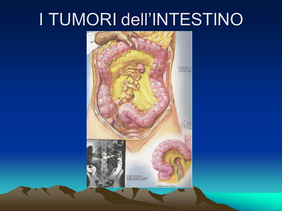 I TUMORI dell'INTESTINO