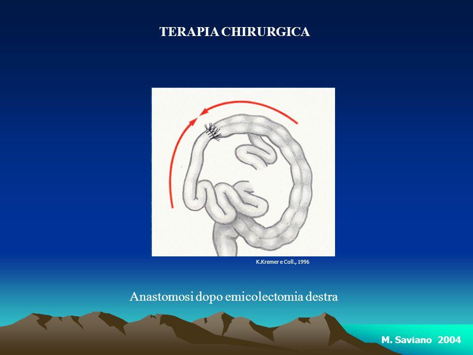 Anastomosi dopo emicolectomia destra