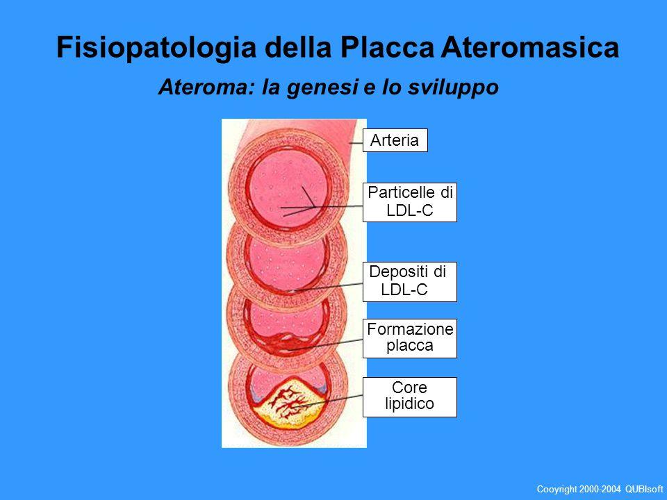 Fisiopatologia della Placca Ateromasica