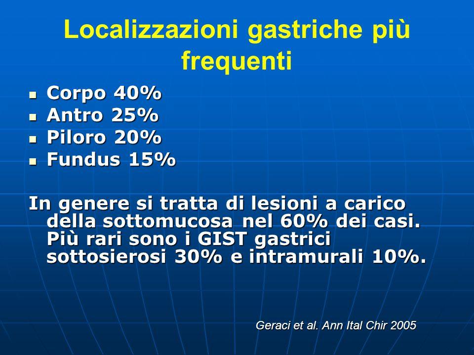 Localizzazioni gastriche più frequenti