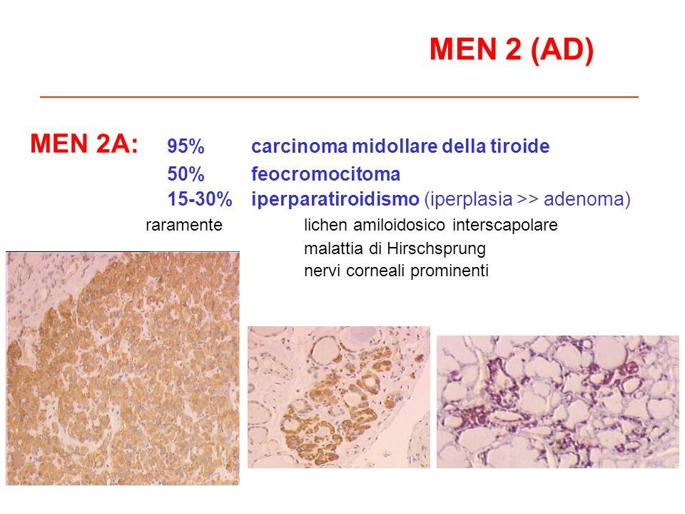 MEN 2 (AD) MEN 2A: 95% carcinoma midollare della tiroide