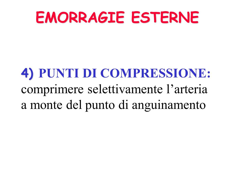 EMORRAGIE ESTERNE 4) PUNTI DI COMPRESSIONE: comprimere selettivamente l'arteria a monte del punto di anguinamento.
