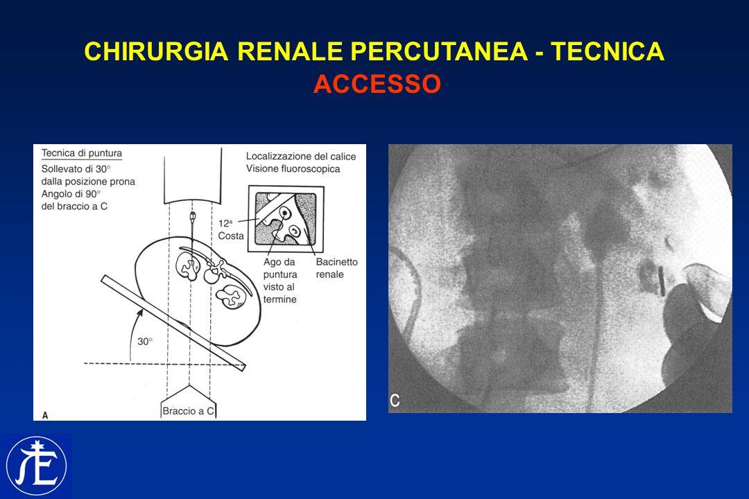 CHIRURGIA RENALE PERCUTANEA - TECNICA