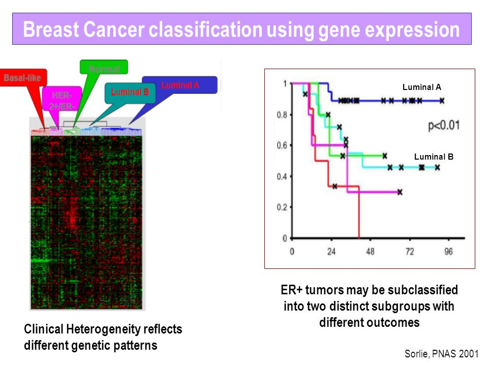 Breast Cancer classification using gene expression
