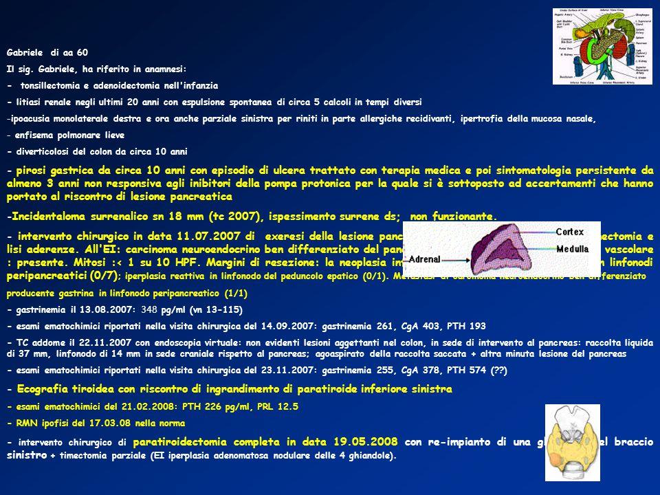 Gabriele di aa 60 Il sig. Gabriele, ha riferito in anamnesi: - tonsillectomia e adenoidectomia nell infanzia.