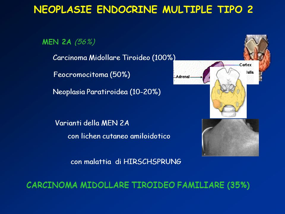 NEOPLASIE ENDOCRINE MULTIPLE TIPO 2