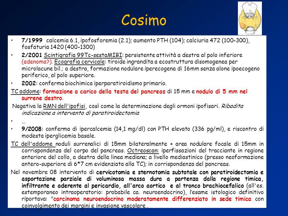 Cosimo 7/1999 calcemia 6.1, ipofosforemia (2.1); aumento PTH (104); calciuria 472 (100-300), fosfaturia 1420 (400-1300)